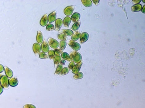 "Algae's potential as a fuel source is so great, it's nicknamed ""green crude."" Photograph by Paul Zahl"