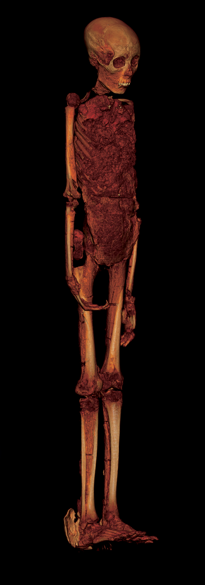 This CT scan reveals the deformed foot, broken knee, and elongated skull of King Tut. Photograph courtesy the Supreme Council of Antiquities, Egypt, and National Geographic
